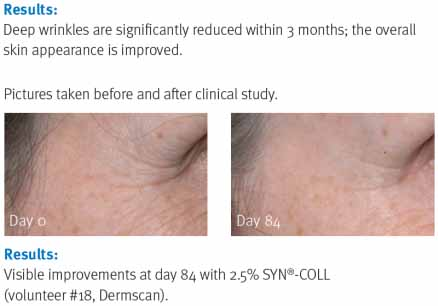 Figure 3. Results of SYN-Coll after three months