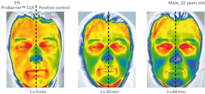 Figure 3. Thermographic images of a 22 year-old male after 3, 30 and 60 min at -5 °C