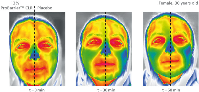 Figure 4. Thermographic images of a 30 year-old female after 3, 30 and 60 min at -5 °C.