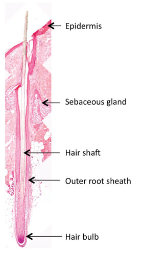 Figure 1. Longitudinal section of hair follicle in a biopsy of scalp skin