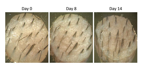 Figure 7. Photographs of scalp skin biopsies showing hair elongation at day 0, day 7 and day 14