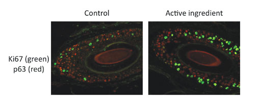 Figure 6. Immunostaining of Ki67 (green) and p63 (red) on human scalp biopsies (nonspecific staining of hair shaft)