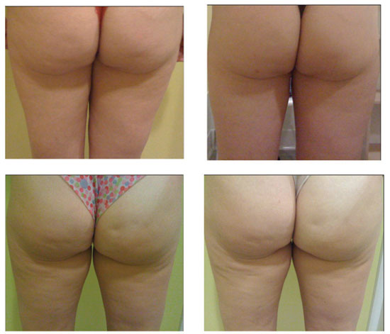Figure 13. The cellulite of two volunteers before and after eight weeks of twice daily use of a control (left thigh) and b) 1% polyglucuronic acid test formula (right thigh)