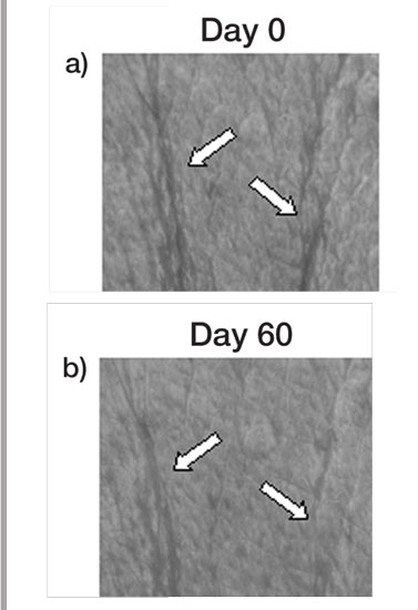Figure 4. Digitalized images of the skin surface topography a) at baseline (day 0), and b) after treatment with S. longicruris for 60 days