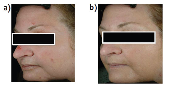 Figure 3. Treatment with 1% bakuchiol lotion a) at baseline, and b) after six weeks of treatment