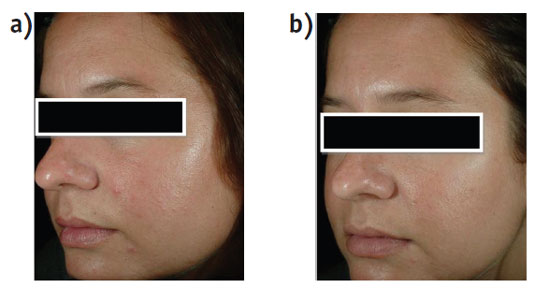 Figure 4. Treatment with 1% bakuchiol lotion a) at baseline, and b) after six weeks of treatment