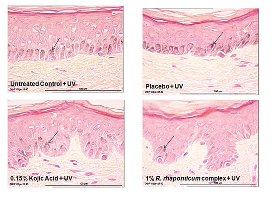 Figure 2. Effect of <em>R. rhaponticum</em> complex., kojic acid or placebo on melanin content in basal layer keratinoctyes