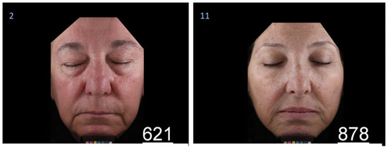 Figure 1. Photographs obtained with imaging equipment, as shown to expert and naïve graders; left, subject actual age = 67; right, subject actual age = 54; both taken after four weeks of product use