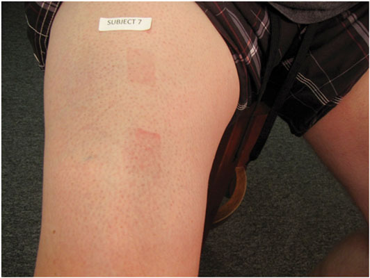 Figure 2. Subject 7's right leg, illustrating erythema in both sites