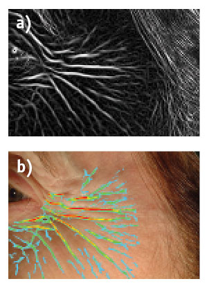 Figure 11. a) Image segmentation by fiber tracking and b) mapping the depth of crow's feet
