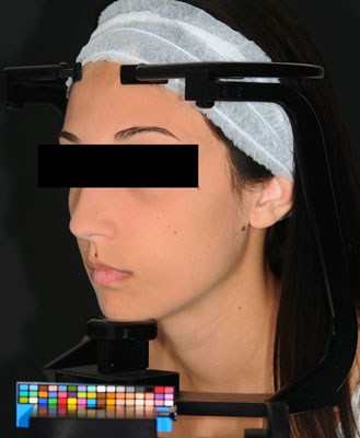 Figure 2. Stereotactic device and color chart developed for skin color registration