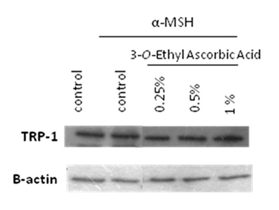 Figure 6. Western blotting detection: inhibitory effect of 3-O-ethyl ascorbic acid on tryrosinase (TRP-1)