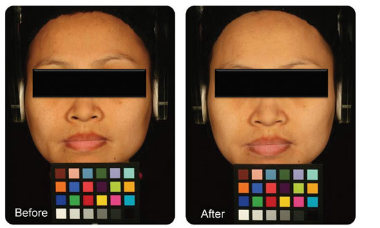 Figure 9. In vivo evaluationf of the efficacy of one whitening lotion in healthy Asian subjects by chromatography