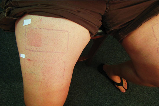 Figure 1. Subject 2's right leg shows erythema in both sites; upper site = unprotected, lower site = SPF 50