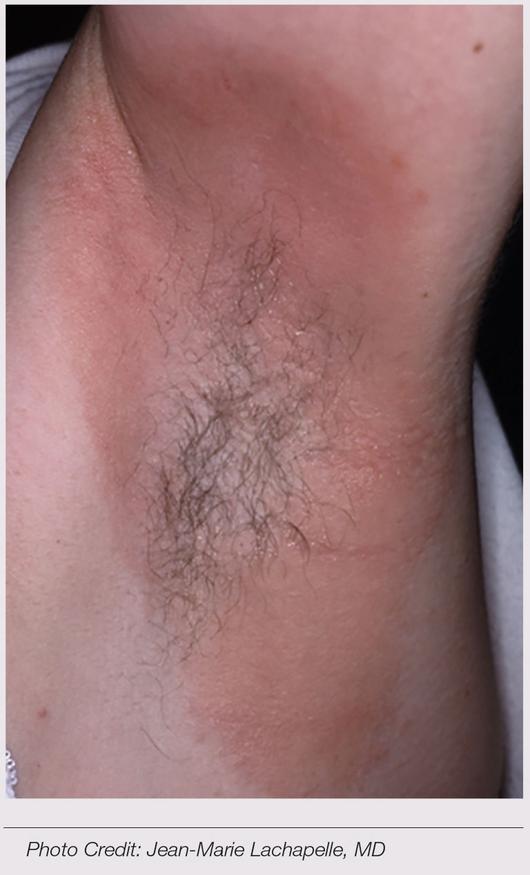 Figure 1. Typical allergic contact dermatitis of the axilla