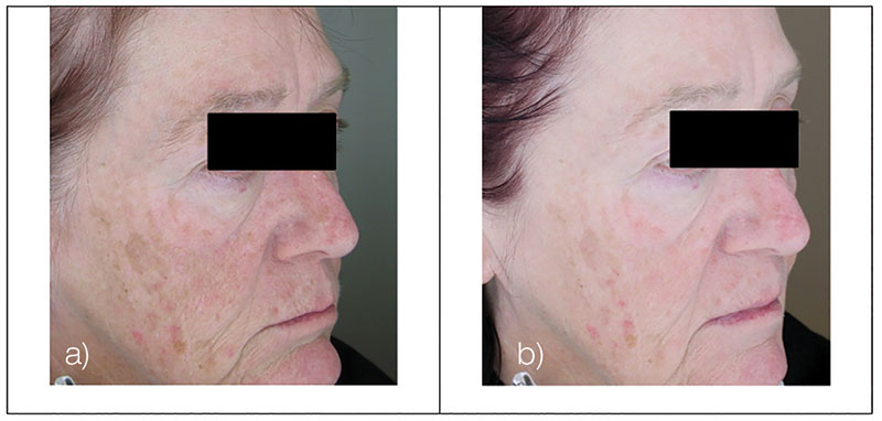 Figure 10. Test subject, right view, at baseline (a) and after 12-week treatment (b)