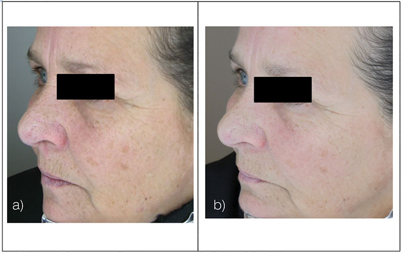 Figure 11. Test subject, left view, at baseline (a) and after 12-week treatment (b)