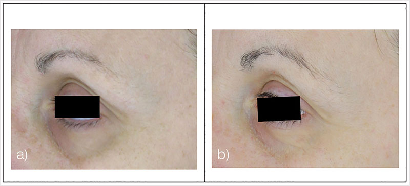 Figure 12. Test subject, left view eye area, at baseline (a) and after 12-week treatment (b)