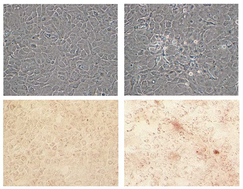Figure 5. Red oil neutral lipid staining demonstration of keratinocyte differentiation
