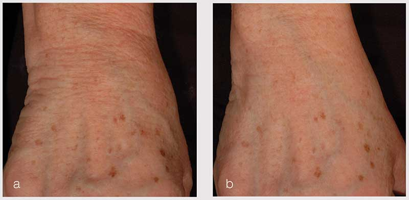 Figure 6. Visible skin firmness and elasticity improvements