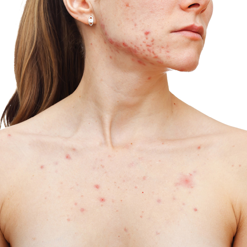 Woman with chest acne-CT1609_Chaudhuri_850