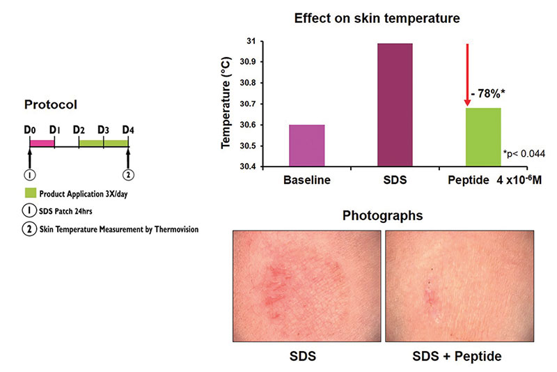 Figure 4. In vivo skin irritation study: Soothing action