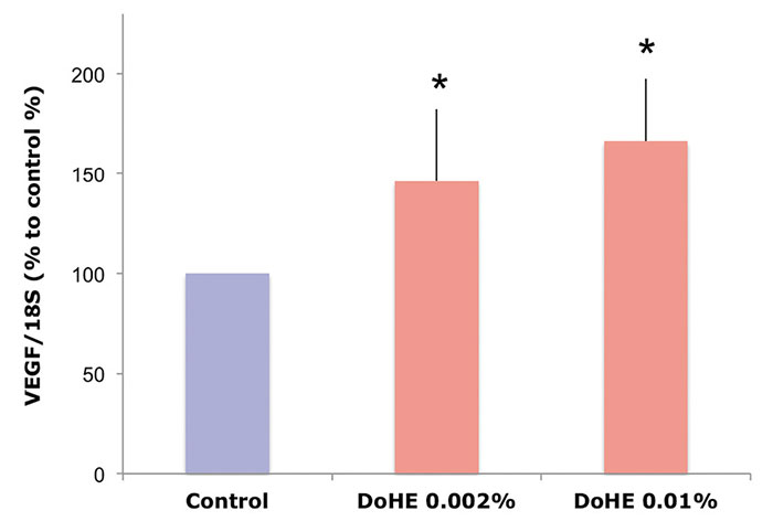 Figure 6. Gene expression analysis in fibroblasts treated with DoHE