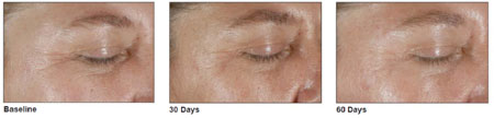 Photos of the eye area after treatment with BioLumen™ Firm