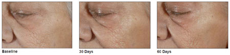 Photos of the cheek area after treatment with BioLumen Firm and activation with UV light