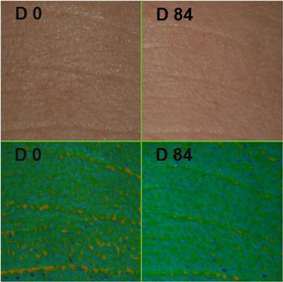 Figure 3. Reduced wrinkle depth after 84-day treatment with HyActive