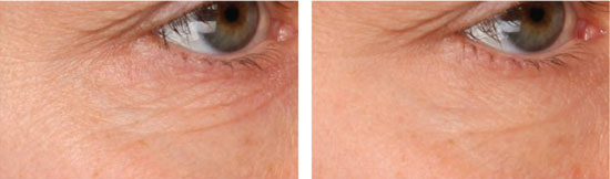 Figure 1. Reduction of lines and wrinkles after 14-day Granactive Retinoid application