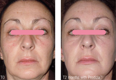 Figure 1. Wrinkle reduction after 10 days and two months of treatment with Prodizia