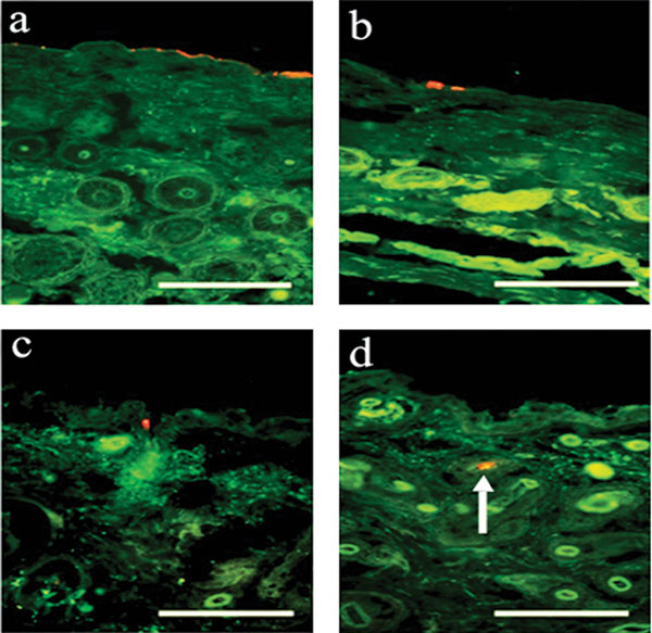 Figure 7. Fluorescent images of skin sections after applied samples
