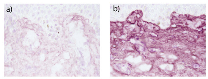 Figure 4. Collagen type III visualization in human skin explants a) without or b) with the topical application of the active at 0.5%; immunostaining—pink staining, 40 × magnification