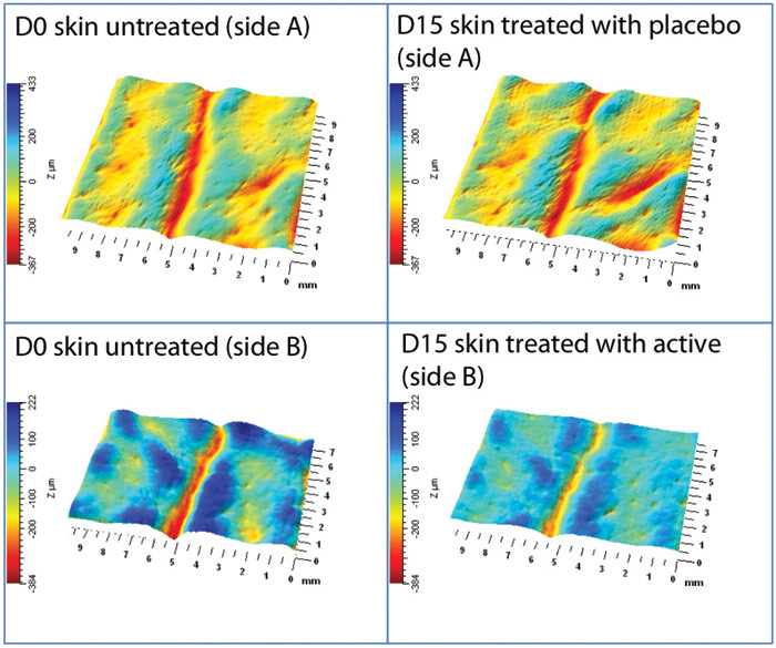 Figure 9. Wrinkle depth and volume assessment of normal skin at D0 and D15 after placebo and 1% active ingredient treatments; data is from the same volunteer (67 years) treated with placebo on side A and with the active ingredient on side B