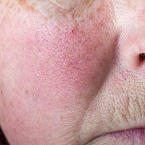 Patent Pick: Rosacea Redness Gets the Flush