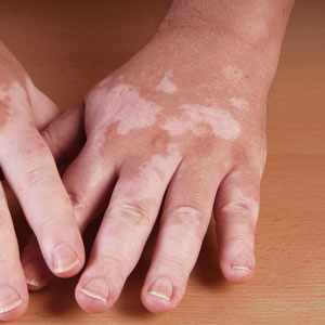 Study Reveals New Effects of Hormones on Skin Tone