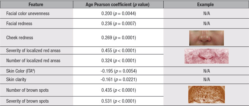 Table 3. Facial Features Related to Skin Color and Pigmentation Correlated with Age