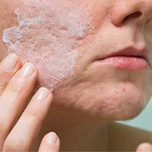 Ashland Combines Formulations to Create Acne-Kit