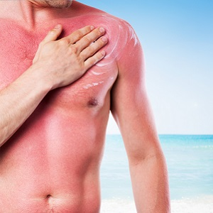 Don't Get Burned: Link between Melanin-Rich Skin & Sunburn