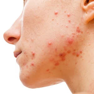 Antioxidant Enzyme Found in P. Acnes